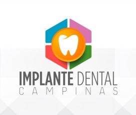 Implante Dental Campinas